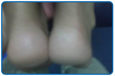 leg-length-post-massage